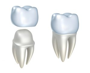 Your dentist in Flint discusses the uses and benefits of dental crowns.