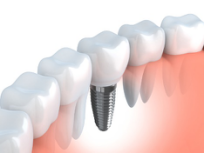 Dr. Naik is your dentist for dental implants in Flint.